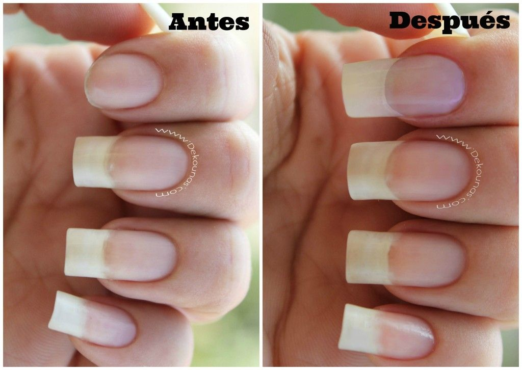 Antes y despues4